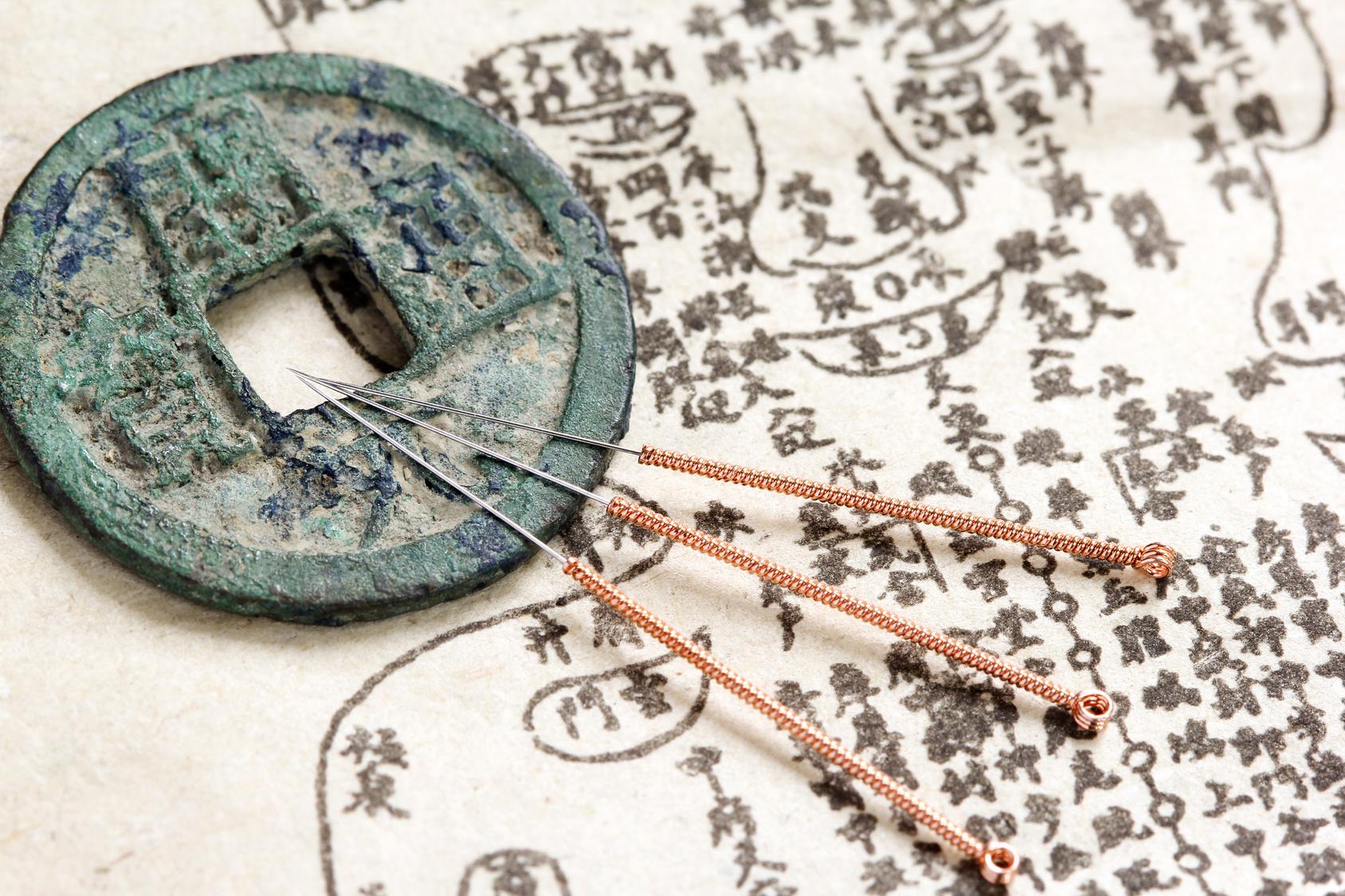 Akupunktur Bild